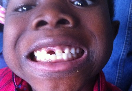 zion first lost tooth